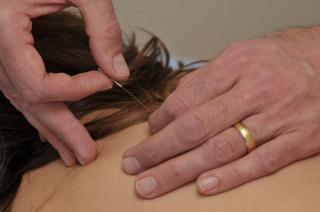Acupunctuur Pinksterboer - Foto's
